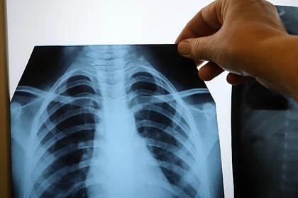 В России оценили загруженность больниц после подъема заболеваемости COVID-19